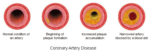 the proper treatment for blocked or narrowed coronary arteries This may indicate coronary artery disease or various other conditions  if you  have a blockage that requires treatment, a balloon can be pushed  there are  some cases where aspirin isn't appropriate, such as if you have a.